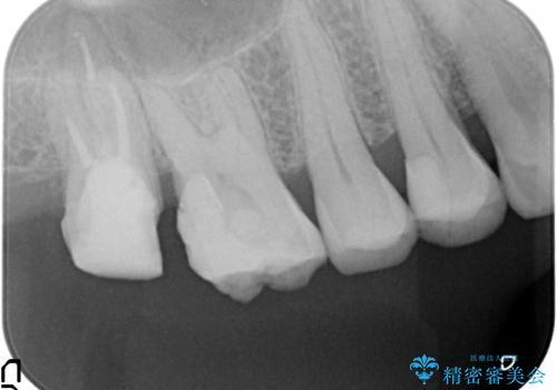 歯髄方向 歯肉方向へと深い 2種類の大きな虫歯の治療中