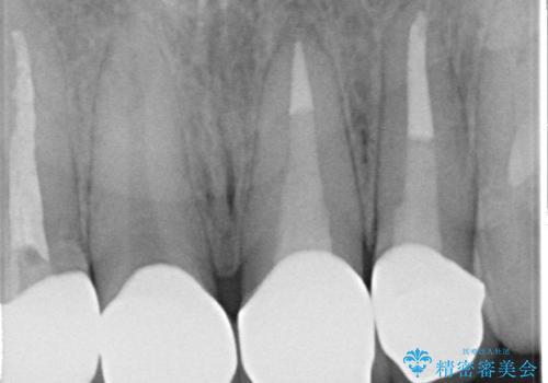 オールセラミッククラウン 前歯を綺麗に 神経が死んだ歯の再治療~補綴の治療後