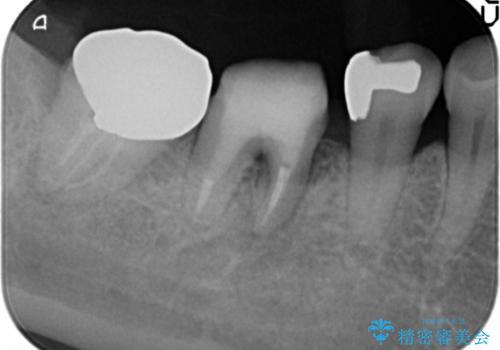 歯ぐきの腫れが治らない 石灰化した狭小根管治療の治療中