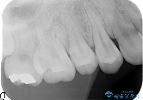 セラミックインレー 奥歯の治療の治療前