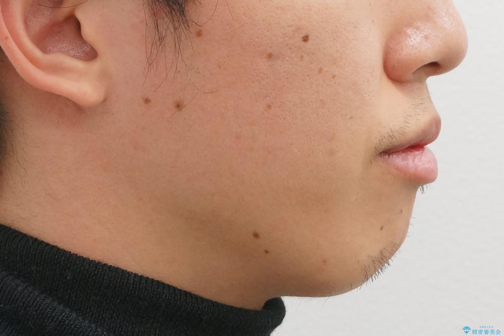 インビザライン矯正 神経のない歯をとって、全て天然歯に の治療前(顔貌)