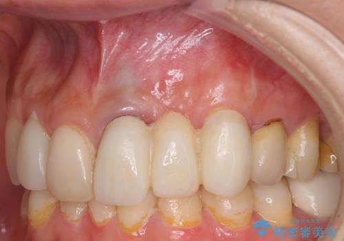 歯肉移植を用いた前歯のオールセラミックブリッジの治療中