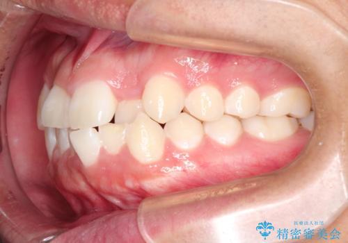前歯のガタガタを目立たずきれいにしたい インビザラインによる見えない矯正の治療前