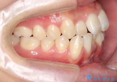 インビザライン矯正 神経のない歯をとって、全て天然歯に の治療中