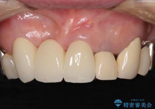 着色が著しい前歯のブリッジをオールセラミックできれいにの治療後