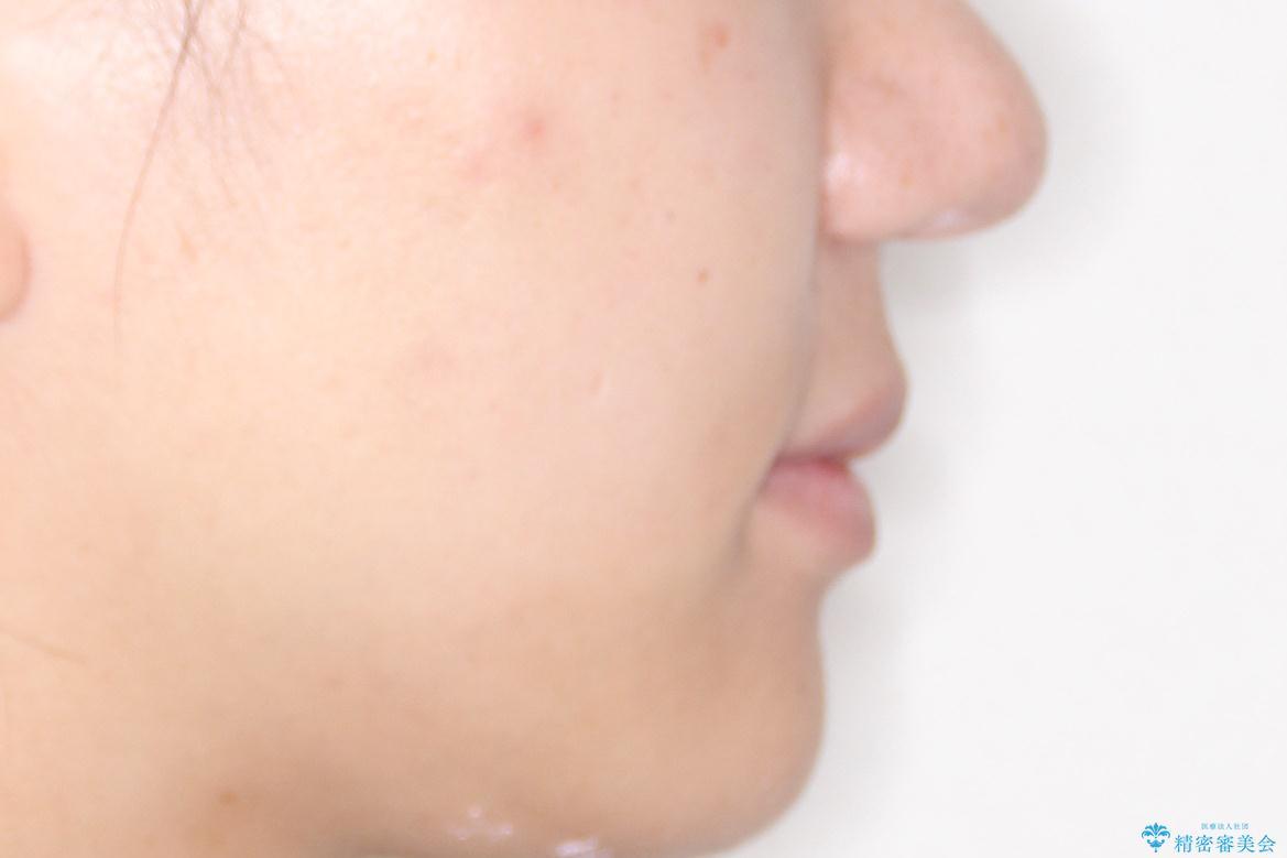 横顔をすっきりさせたい 下の前歯が1本少ない方の変則的な抜歯矯正の治療後(顔貌)