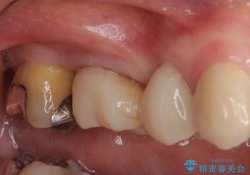 奥歯の歯槽骨が失われた 歯周外科処置後のセラミックブリッジの治療前