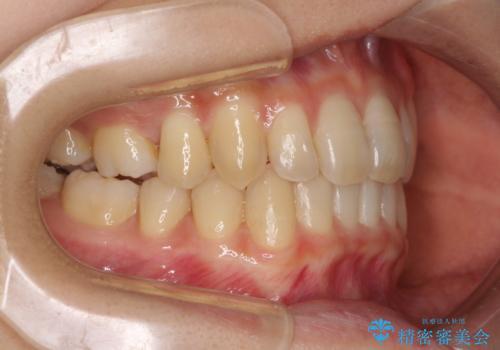 奥歯の反対咬合 上顎骨を拡大してインビザラインで矯正の治療後