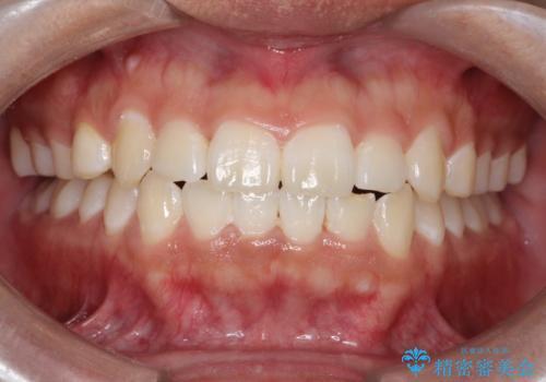 前歯のガタガタを目立たずきれいにしたい インビザラインによる見えない矯正の症例 治療後
