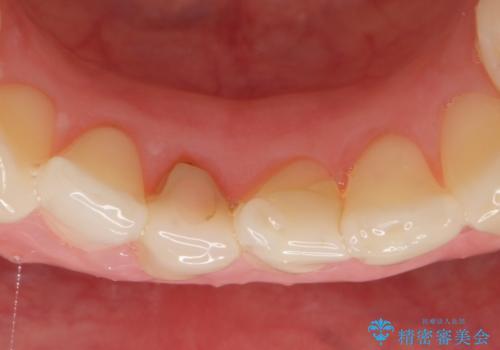 オールセラミッククラウン(スペシャル) 見た目が気になる前歯を綺麗にの治療前
