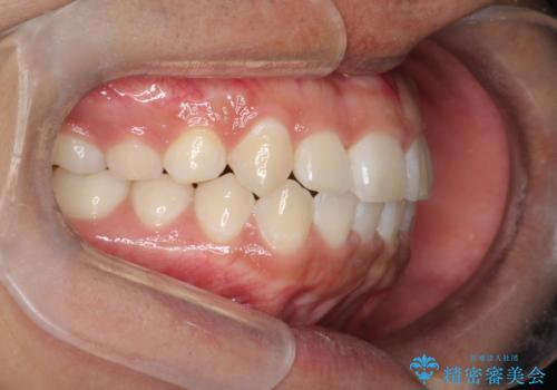 前歯のガタガタを目立たずきれいにしたい インビザラインによる見えない矯正の治療後