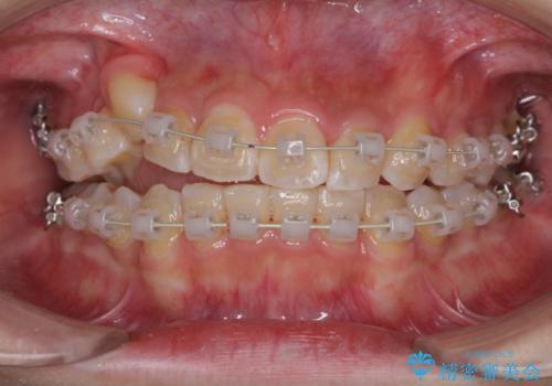 埋もれた八重歯を引っ張り出す 目立たない矯正装置の治療中