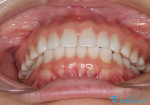 インビザラインによる軽度な出っ歯の矯正治療の治療後