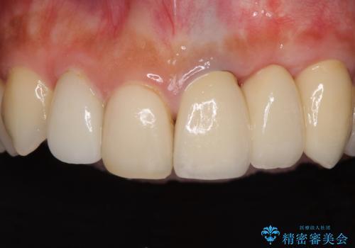 歯肉移植を用いた前歯のオールセラミックブリッジの症例 治療後