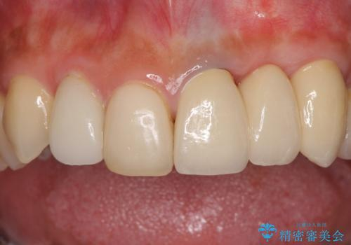歯肉移植を用いた前歯のオールセラミックブリッジの治療後