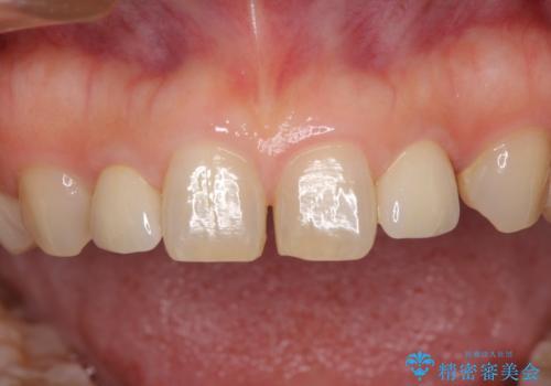 矮小歯のセラミック治療 小さい前歯を自然に仕上げるの治療後