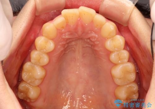 出ている前歯をインビザラインにて引っ込めるの治療前