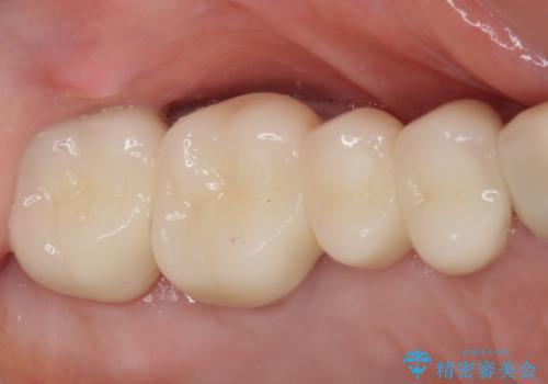 奥歯の歯槽骨が失われた 歯周外科処置後のセラミックブリッジの治療後