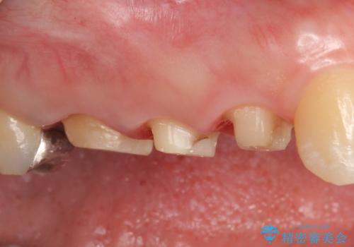 オールセラミッククラウン 咬合痛のある歯の治療の治療中