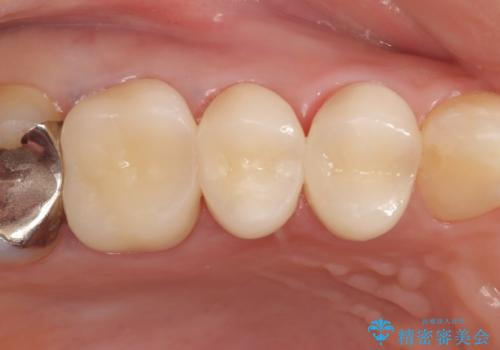 オールセラミッククラウン 咬合痛のある歯の治療の治療後