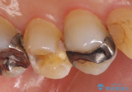セラミックインレー 脱離した銀歯の治療の治療前