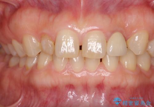 矮小歯のセラミック治療 小さい前歯を自然に仕上げるの治療前