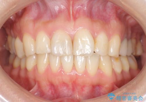 前歯の歯並びが気になる マウスピース矯正 30代女性の症例 治療後