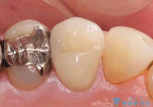 オールセラミッククラウン(エクセレント) 神経まで達してしまった虫歯の治療の治療後
