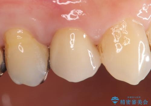 オールセラミッククラウン(エクセレント) 神経まで達してしまった虫歯の治療の症例 治療後