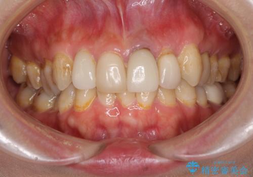 歯肉移植を用いた前歯のオールセラミックブリッジの治療前