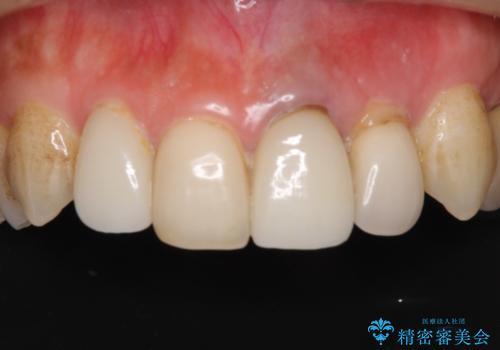 歯肉移植を用いた前歯のオールセラミックブリッジの症例 治療前