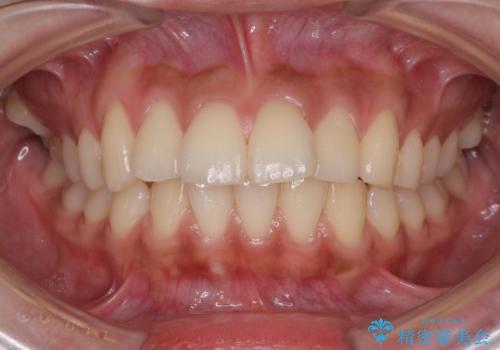 横顔をすっきりさせたい 下の前歯が1本少ない方の変則的な抜歯矯正の治療前