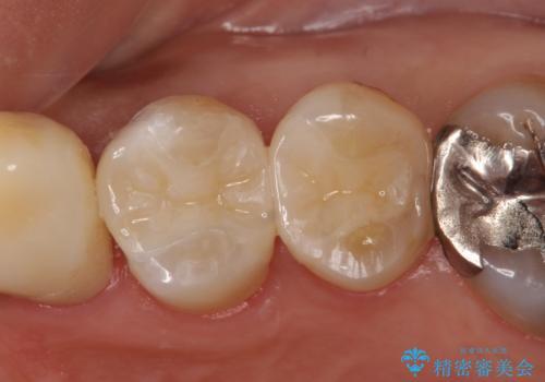 セラミックインレー 脱離した銀歯の治療の症例 治療後