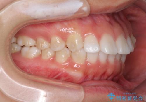 インビザラインによる軽度な出っ歯の矯正治療の治療中