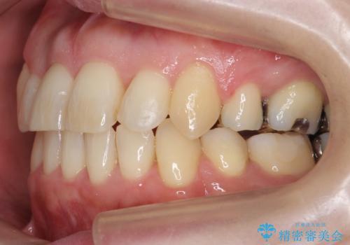 40代の矯正 八重歯を綺麗に の治療後