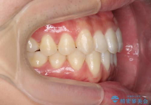 インビザライン矯正 神経のない歯をとって、全て天然歯に の治療後