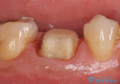 オールセラミッククラウン 咬むと疼く銀歯の治療の治療中