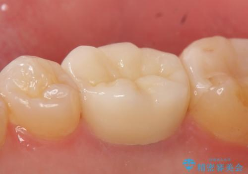 オールセラミッククラウン 咬むと疼く銀歯の治療の治療後