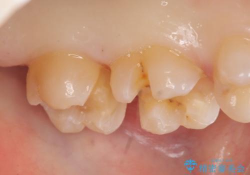 セラミックインレー 銀歯の下の縁下カリエス(歯茎より深い虫歯)の治療の治療中