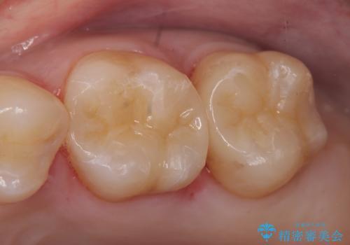 セラミックインレー 銀歯の下の縁下カリエス(歯茎より深い虫歯)の治療の症例 治療後