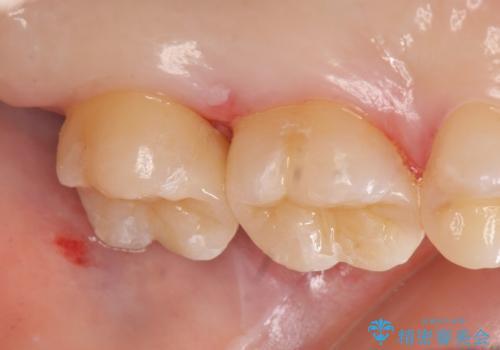 セラミックインレー 銀歯の下の縁下カリエス(歯茎より深い虫歯)の治療の治療後