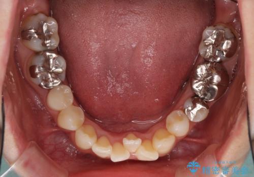 上顎骨拡大を併用したインビザライン矯正の治療中
