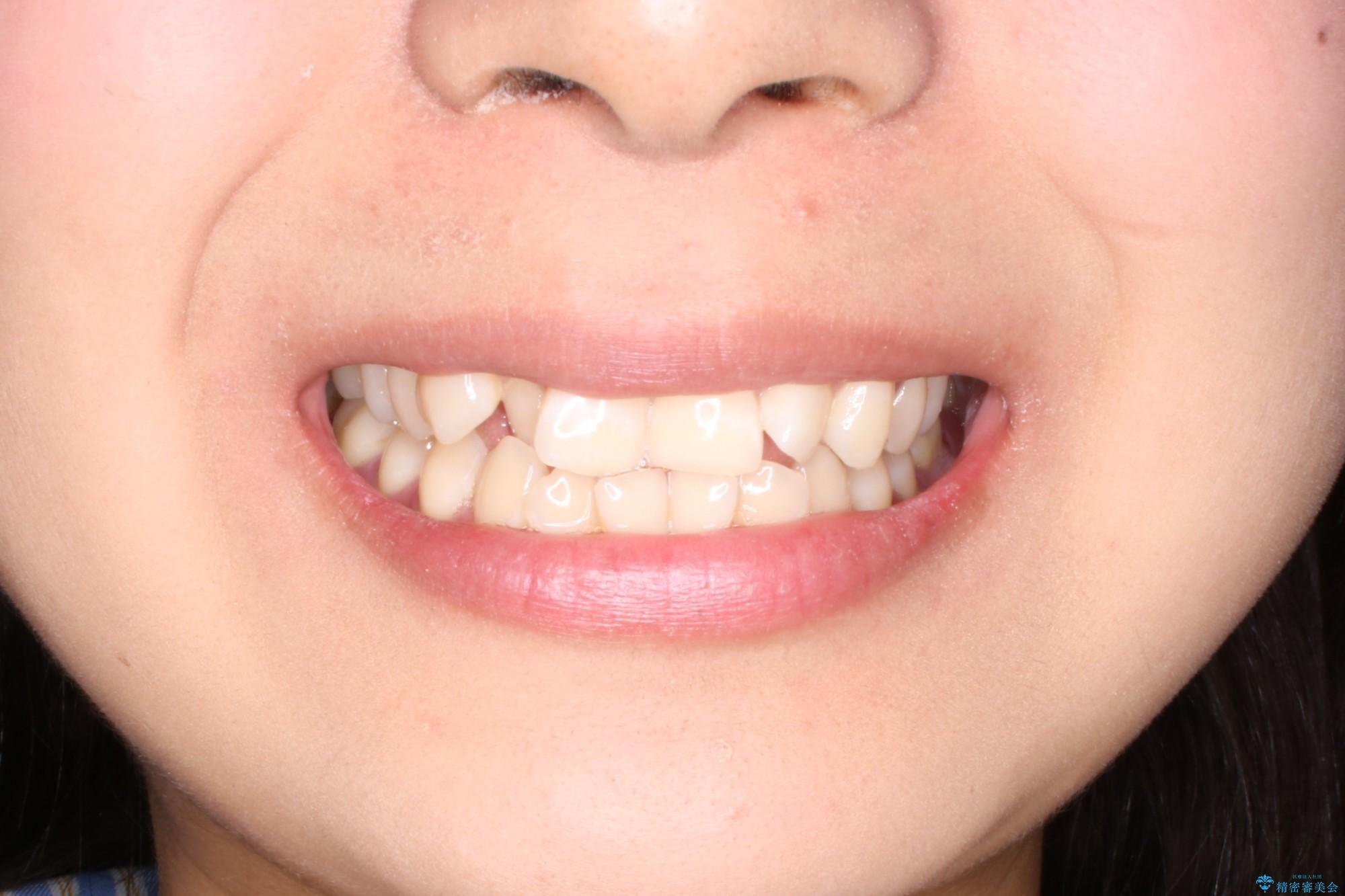 抜かない矯正 審美装置によるワイヤー治療の治療前(顔貌)