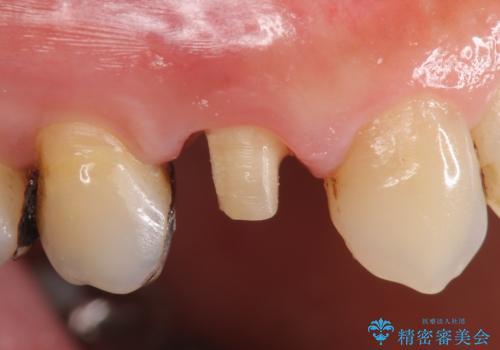 オールセラミッククラウン(エクセレント) 神経まで達してしまった虫歯の治療の治療中