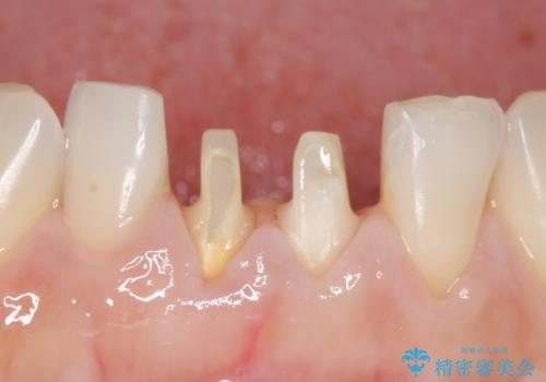 オールセラミッククラウン(スペシャル) 見た目が気になる前歯を綺麗にの治療中