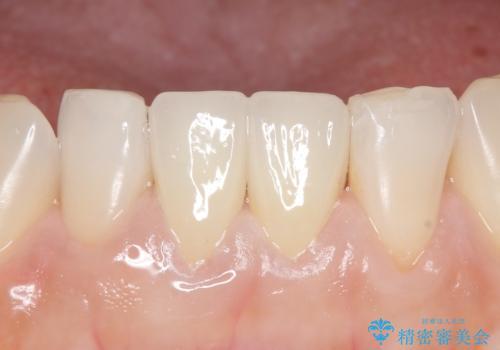 オールセラミッククラウン(スペシャル) 見た目が気になる前歯を綺麗にの治療後