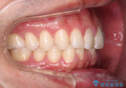 下の前歯のがたがたを治したい。インビザラインライトの治療前