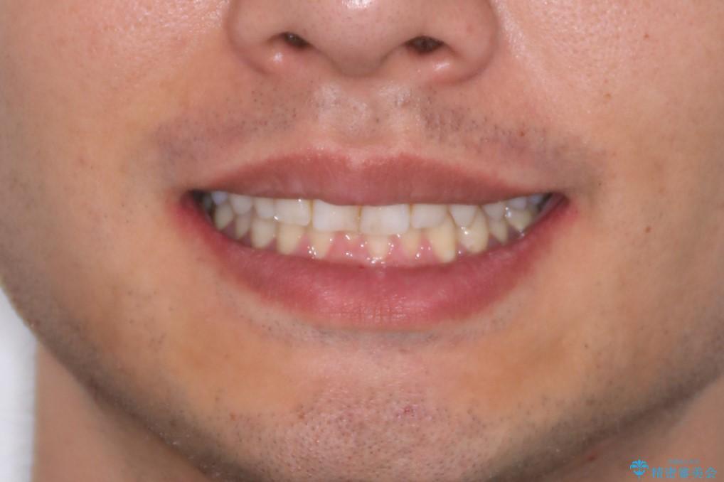 下の前歯のがたがたを治したい。インビザラインライトの治療前(顔貌)