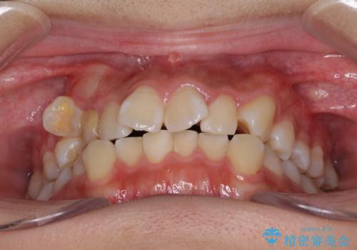 埋もれた八重歯を引っ張り出す 目立たない矯正装置の治療前