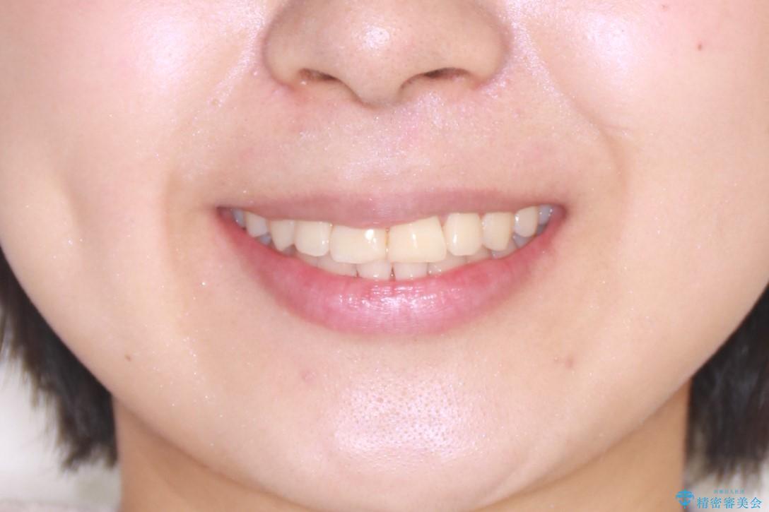 抜かない矯正 審美装置によるワイヤー治療の治療後(顔貌)